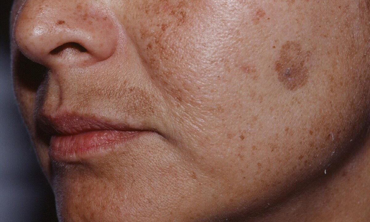 How to get rid of senile spots