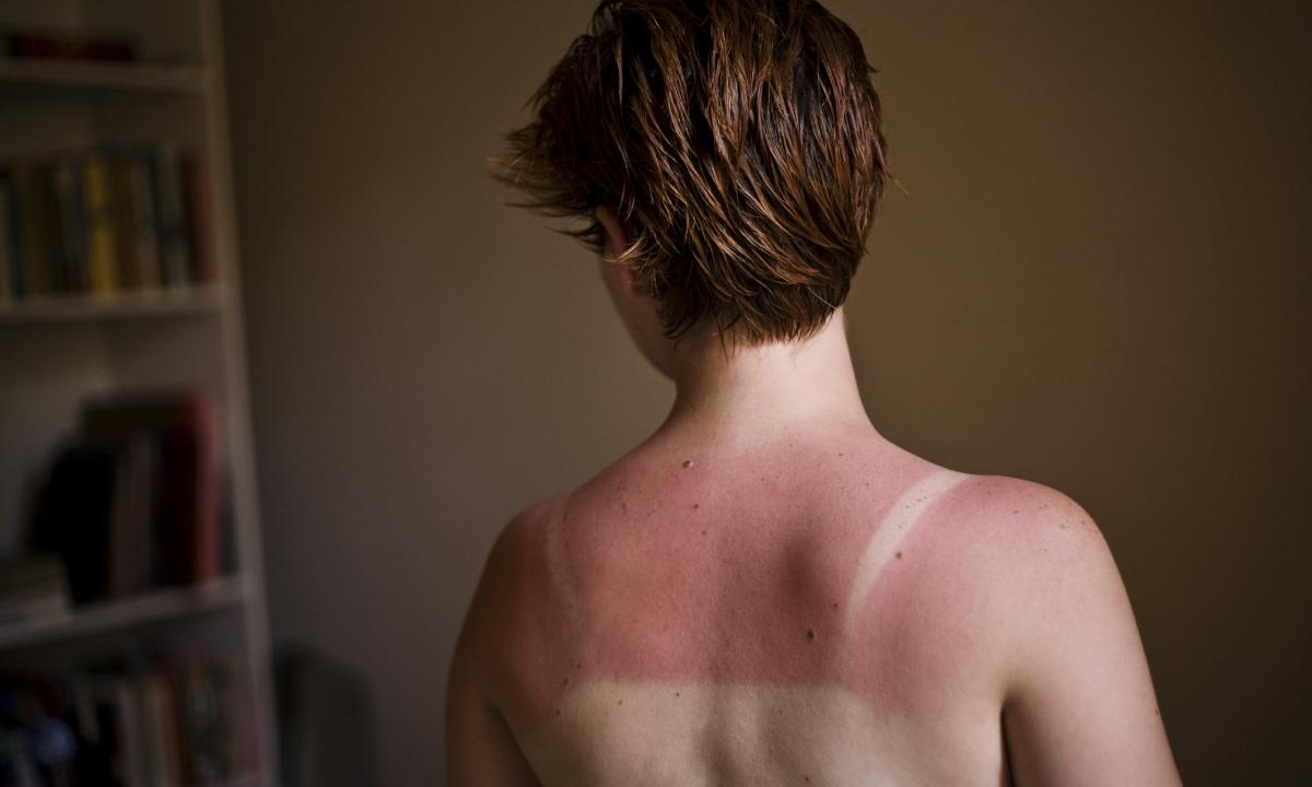 How to be if skin has burned in the sun