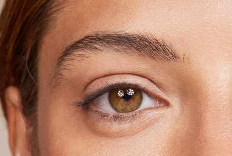 How quickly to get rid of circles under eyes