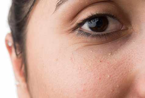 How to get rid of spots under eyes